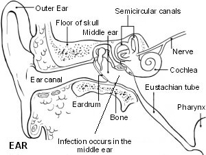 the-ear-otitis-media
